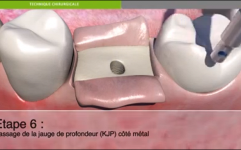 Protocole chirurgical de pose d'un implant dentaire.