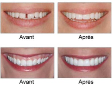 Blanchiment des dents, Facette Dentaire